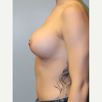 25-34 year old woman treated with Breast Augmentation after 3692126