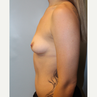 25-34 year old woman treated with Breast Augmentation before 3692126