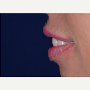 25-34 year old woman treated with Lip Augmentation with Restylane before 3642192