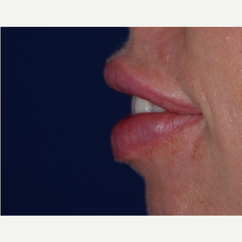 25-34 year old woman treated with Lip Augmentation with Restylane after 3642192
