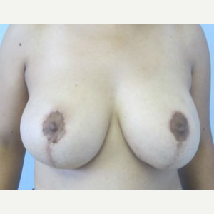 Breast Lift after 3055014