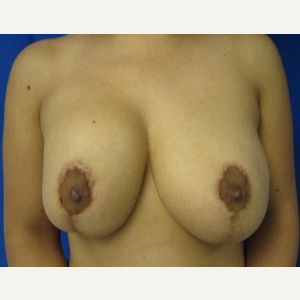 Breast Lift before 3055014