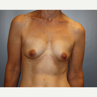 55-64 year old woman treated with Breast Augmentation before 3683478