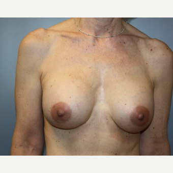 55-64 year old woman treated with Breast Augmentation after 3683478