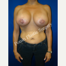 35-44 year old woman treated with Breast Implants after 1548774