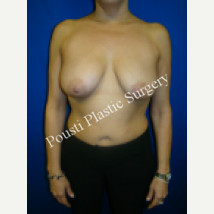 35-44 year old woman treated with Breast Implants before 1548774