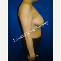35-44 year old woman treated with Breast Implants 1548774