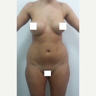 18-24 year old woman treated with Liposculpture before 2610826