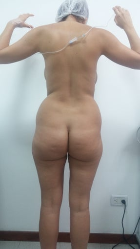 18-24 year old woman treated with Liposculpture 2610826