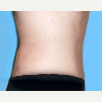 Tummy Tuck after 3813578