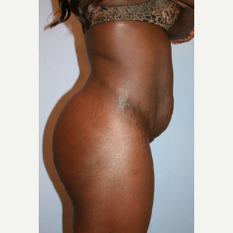25-34 year old woman treated with Tummy Tuck before 2458037