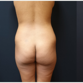 25-34 year old woman treated with Brazilian Butt Lift before 3731865