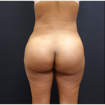 25-34 year old woman treated with Brazilian Butt Lift after 3731865