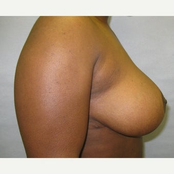 45 year old woman treated with Breast Reduction 1726767