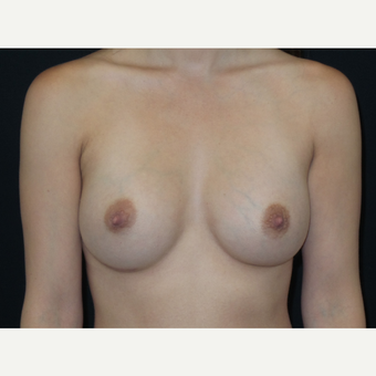 25-34 year old woman treated with Breast Implants after 3652117