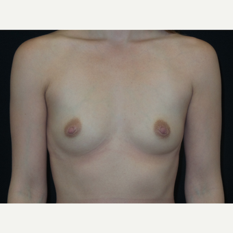 25-34 year old woman treated with Breast Implants before 3652117