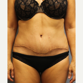 45-54 year old woman treated with Tummy Tuck after 3424033
