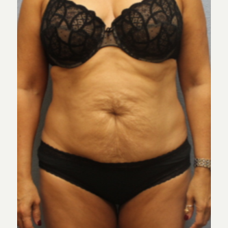 45-54 year old woman treated with Tummy Tuck before 3424033