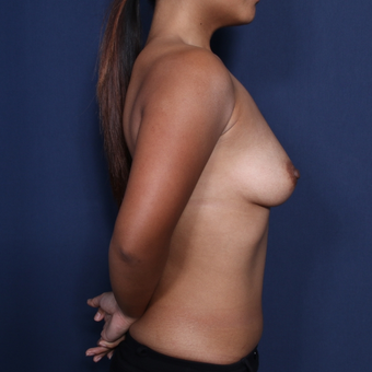 25-34 year old woman treated with Breast Augmentation (view 2 of 2) before 3129023