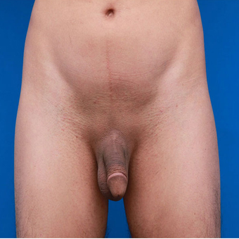 35-44 year old man treated with Penis Enlargement before 3179447