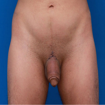 35-44 year old man treated with Penis Enlargement after 3179447