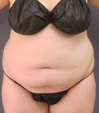 18-24 year old woman treated with Tumescent Liposuction