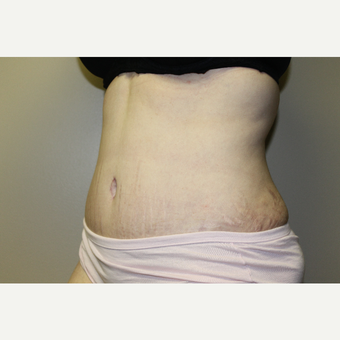 25-34 year old woman treated with Tummy Tuck after 3225133