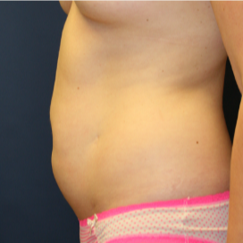 29 yr old woman with abdominal surgery scar and post-pregnancy abdomen.  Scar removed by tummy tuck.