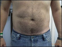53 Year Old Male Treated with CoolSculpting for abdomen after 1299993