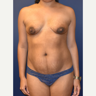 35-44 year old woman treated with Mommy Makeover before 3348744