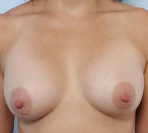 Breast Augmentation after 920095