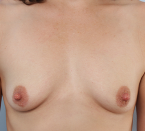 Breast Augmentation before 920095