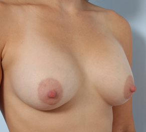 Breast Augmentation 920095