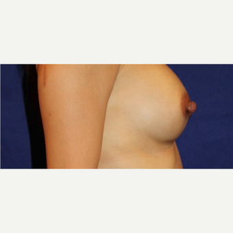 44 Year Old Woman - Breast Augmentation after 3583198