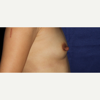 44 Year Old Woman - Breast Augmentation before 3583198