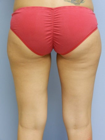 Laser Lipo on Outer Thighs before 384799
