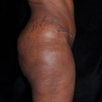 35-44 year old woman treated with Tummy Tuck after 2232487