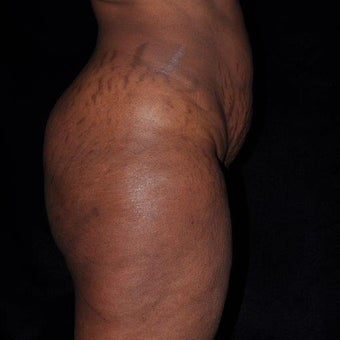 35-44 year old woman treated with Tummy Tuck before 2232487