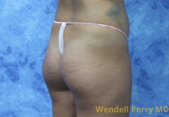 18-24 year old woman treated with Brazilian Butt Lift before 3341046
