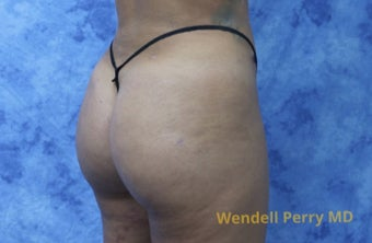 18-24 year old woman treated with Brazilian Butt Lift after 3341046