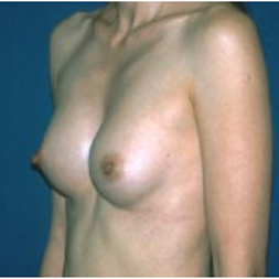 Breast Augmentation after 3720751