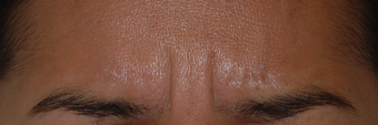 "Botox for Glabella ""11's"" before 1376629"