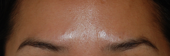 "Botox for Glabella ""11's"" after 1376629"