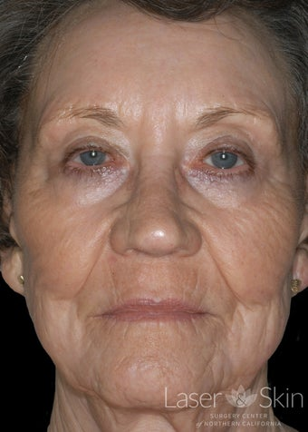 75 and up year old woman treated with CO2 Laser Resurfacing
