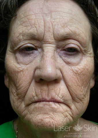 75 and up year old woman treated with CO2 Laser Resurfacing before 1719735