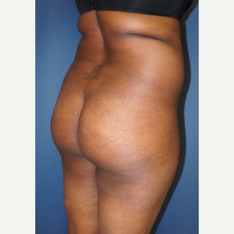 35-44 year old woman treated with Brazilian Butt Lift before 2742909