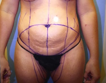 25-34 year old woman treated with Tummy Tuck with lipo before 3384513