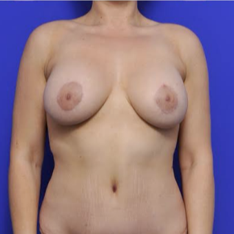 35-year-old woman treated with Breast Augmentation after 3371555