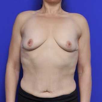 35-year-old woman treated with Breast Augmentation before 3371555