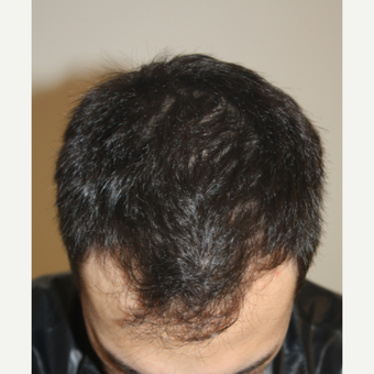 FUE Hair Transplant Result 1,820 grafts before 3630157